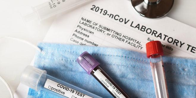 Test sierologico per la determinazione quantitativa anticorpi ANTI-SARS-CoV-2: responsabile e anche solidale